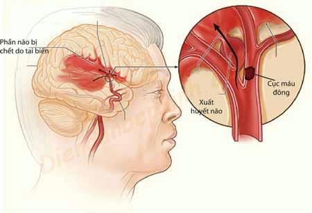 Vì sao bị bện cao huyết áp