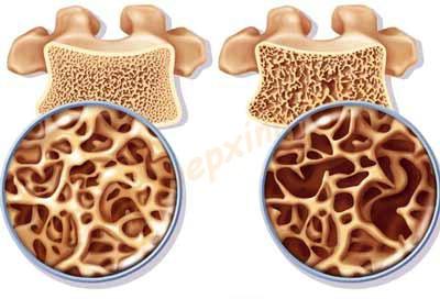 Cách phòng chống bện loãng xương