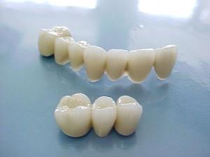 Chân răng